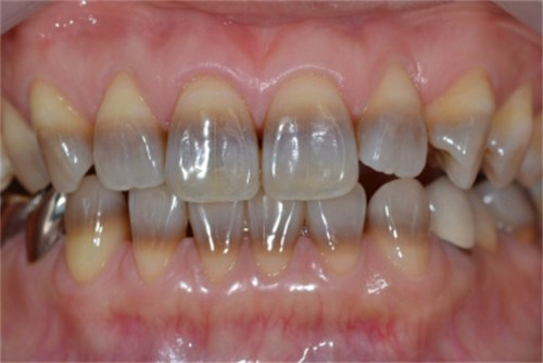 Teeth Whitening For An Aging Smile Go Smile
